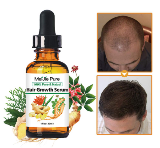 meijie pure hair growth serum